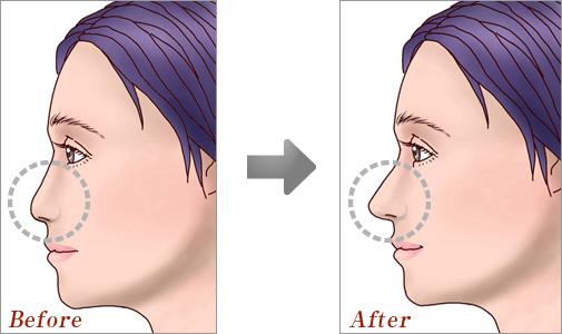 鼻中隔延長術01