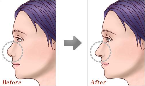 鼻中隔延長術02