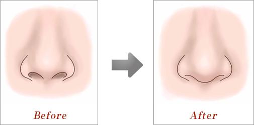 鼻中隔延長術03