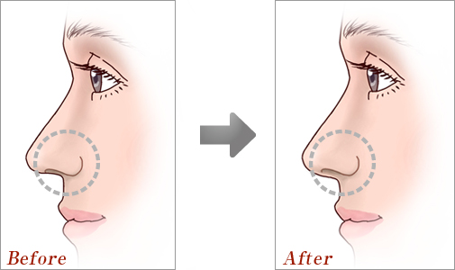 鼻中隔延長術04