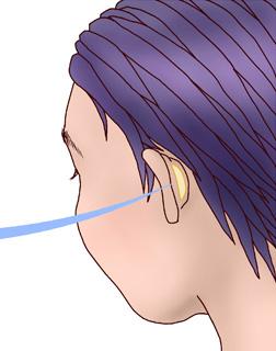 鼻中隔延長術05