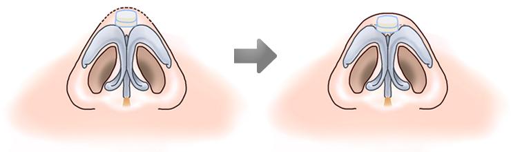 鼻中隔延長術09