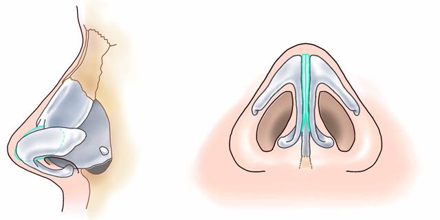 鼻中隔延長術10