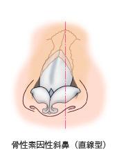 骨性素因性斜鼻(直線型)