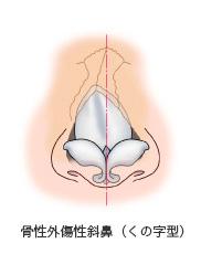 骨性外傷性斜鼻(くの字型)