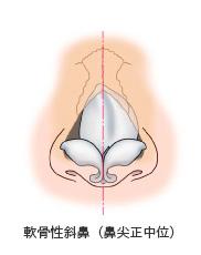 軟骨性斜鼻(鼻正中位)