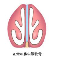 正常の鼻中隔軟骨