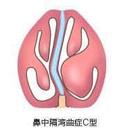 鼻中隔湾曲症C型