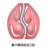 鼻中隔湾曲症S型