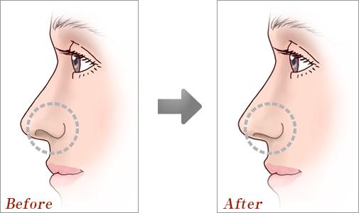 鼻孔縁形成術01