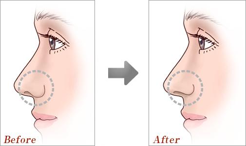 鼻孔縁形成術02