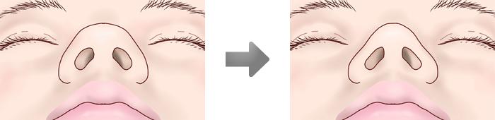鼻尖縮小術3D法
