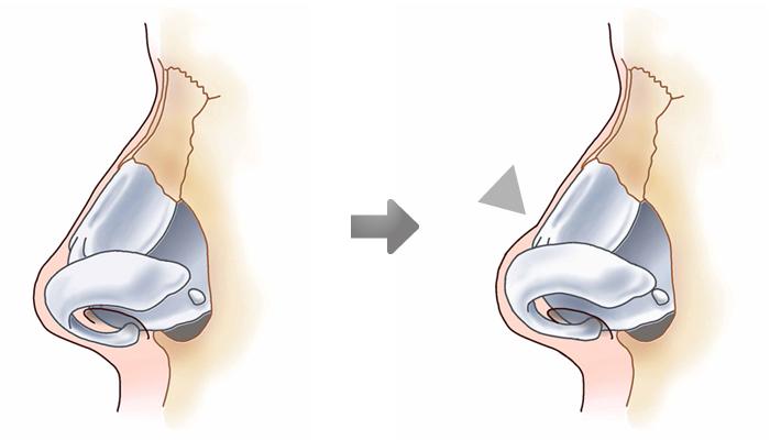 鼻尖縮小術3D法04
