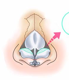 鼻尖縮小術3D法06