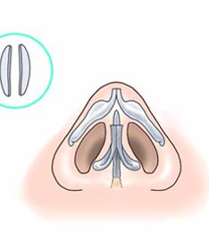 鼻尖縮小術3D法07