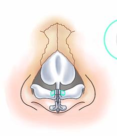 鼻尖縮小術3D法09