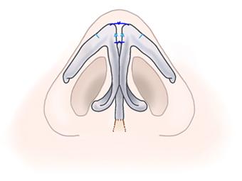 鼻尖形成術07