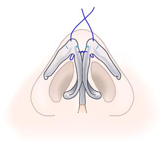 鼻尖縮小術06