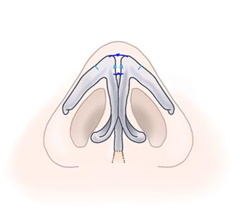 鼻尖縮小術07