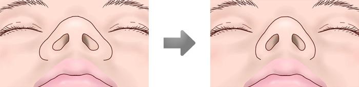鼻翼縮小術01