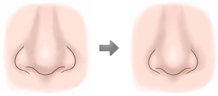 鼻翼縮小術02