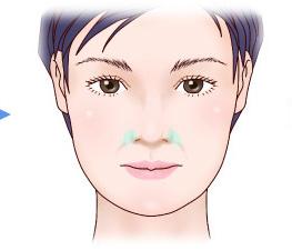 鼻翼基部プロテーゼ