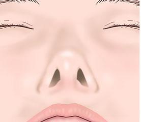 before鼻翼修正術