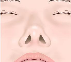 after鼻翼修正術