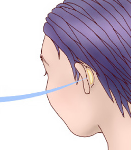 鼻翼修正術方法