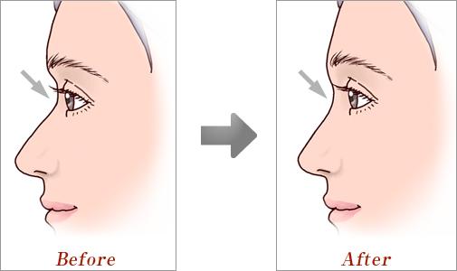 眉間プロテーゼ01