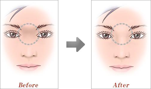 眉間プロテーゼ02