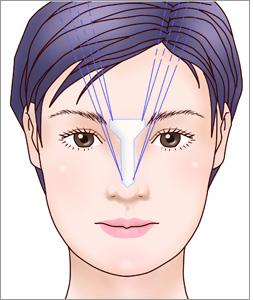 眉間プロテーゼ