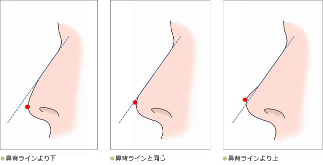 鼻のプロフィール03